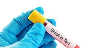 تحليل Bilirubin