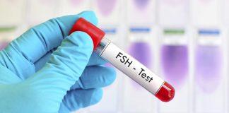 تحليل FSH