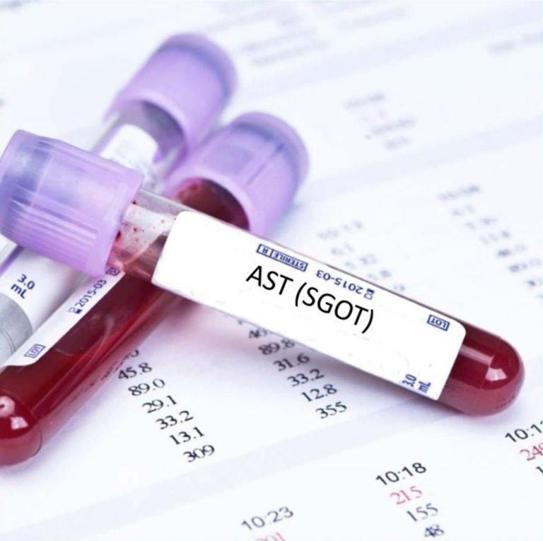 تحليل AST