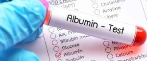 albumin تحليل الألبومين