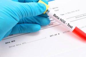 تحليل B-HCG