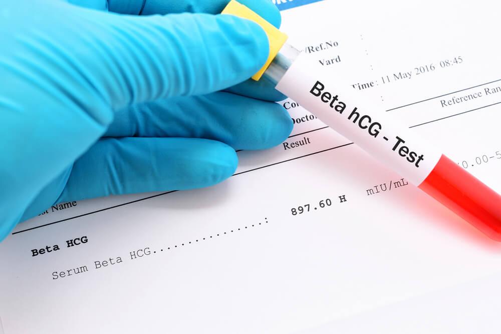 ما هو تحليل B Hcg لماذا قد يطلبه الطبيب وما يجب على المريض معرفته عن هذا التحليل