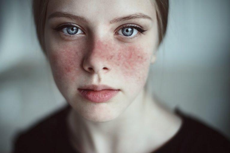 مرض الذئبة Lupus