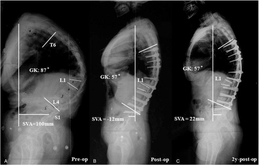 ما هو مرض إلتهاب الفقار اللاصق Ankylosing Spondylitis؟ وما هي أعراضه وطرق علاجه؟