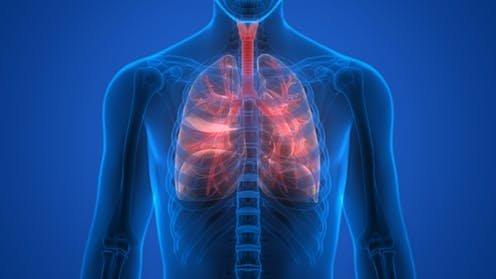 ما هو مرض التليف الكيسي Cystic Fibrosis؟ وما هي أعراضه وطرق علاجه؟